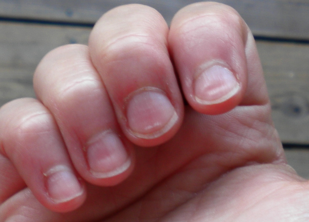 8 Health Warnings Your Fingernails May Be Sending Health
