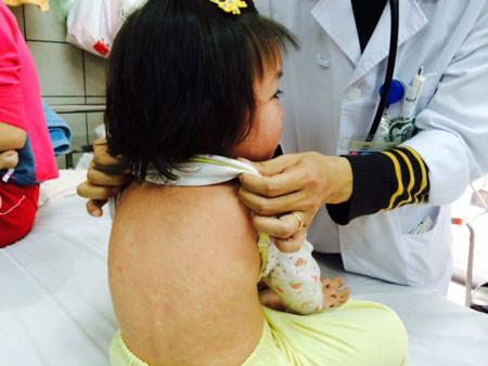 Những kiêng kỵ và bài thuốc trị bệnh sởi theo y học dân gian - Chăm sóc bé - Bảo vệ sức khỏe trẻ em - Cách nuôi dạy con trẻ - Làm cha mẹ