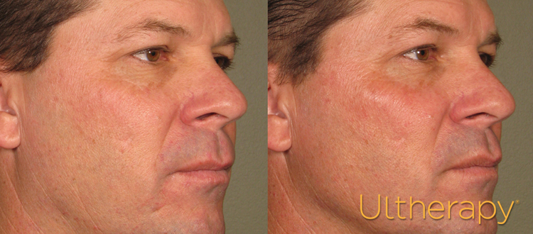 Miami Ultherapy Treatment