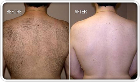 How good is Laser Hair Removal?