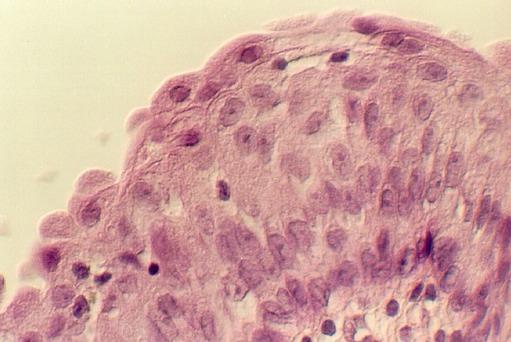 TRANSITIONAL EPITHELIUM Microanatomy Web Atlas Gwen V Childs, PhD