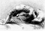 Conversion Hysteria Disorder