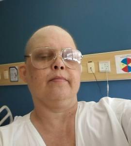 Careca no hospital quando tive a Neutropenia em julho de 2014