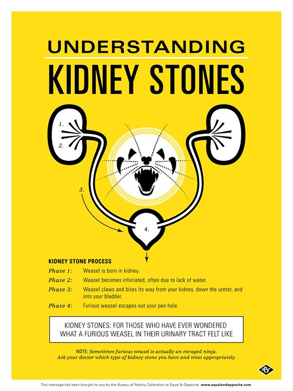Understanding Kidney Stones \u2014 Medical Poster on Behance