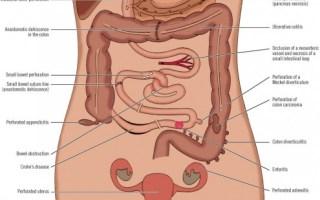 περιτονίτιδα