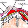 cholangiogram2 Cephal
