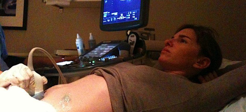 Ultrasound_examination_of_woman