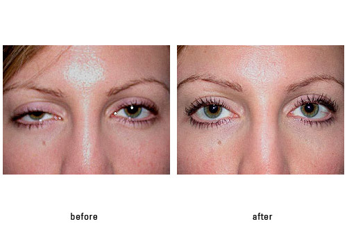 Ptosis Photos « Beverly Hills Cosmetic Eyelid Surgery \u2013 Dr Guy Massry - ptosis surgery
