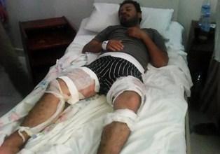 جهاد محمد مهيوب في مستشفى (أدنا آدن) بمدينة هرجيسا1 (1)