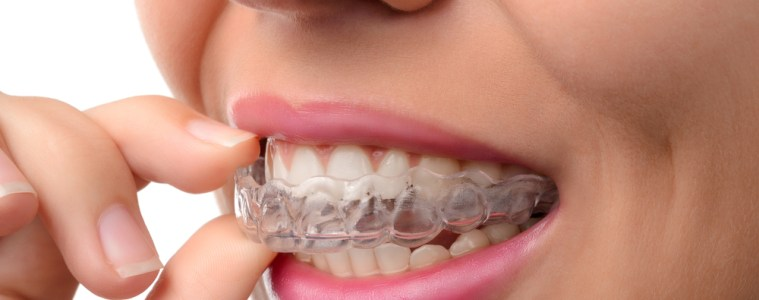 How much do braces cost for Invisalign?