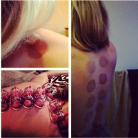Acupuncture and Cupping in Edmonton