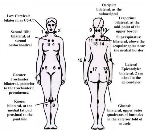 fibromyalgia body diagram