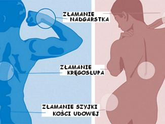 zlamania-osteoporotyczne