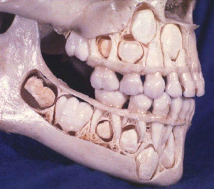 Старые зубы в соннике