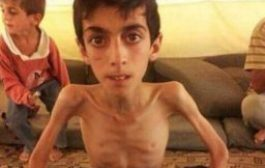 Bugün soframızda neler vardı? Açlıktan ölüyor masum insanlar!