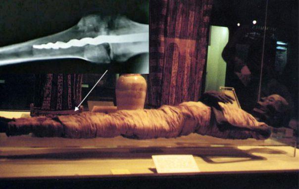 usermontu-mummy El Misterio Médico De Usermontu: ¿Por Qué El Descubrimiento De Un Tornillo En Una Rótula De 2600 Años Dejó Perplejos A Los Expertos?