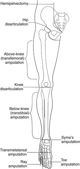 Amputation Musculoskeletal Key