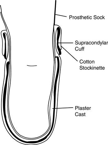 Transtibial Prosthetics Musculoskeletal Key