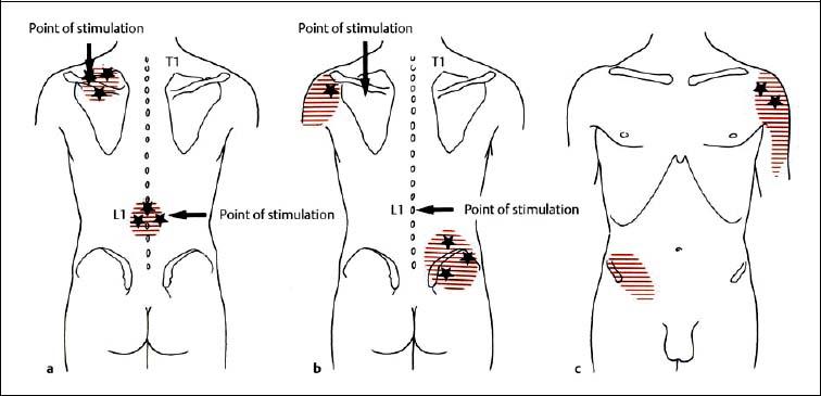hypertonic solution diagram