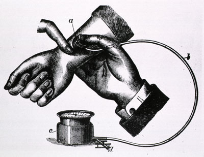 World Health Day 2013 \u2013 A short history of sphygmomanometers and