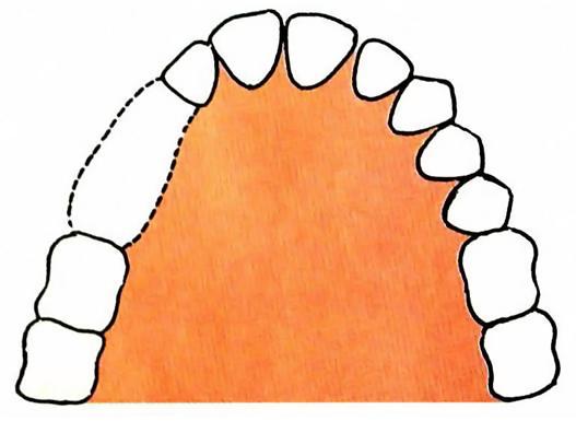 Removable Partial Denture \u2013 Classification \u2013 My Dental Technology Notes