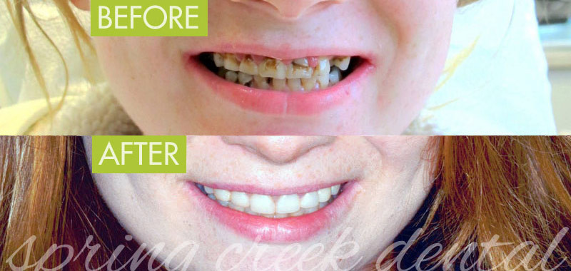 Before  After Composite Restoration and Tooth Implant Spring