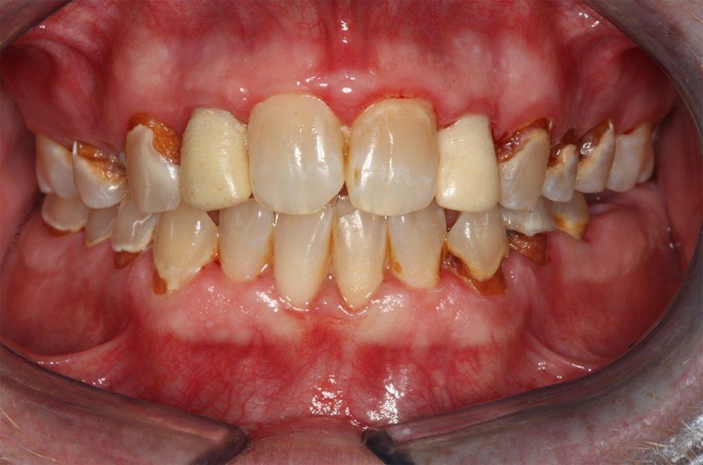 Composite Restoration - My Plantation Dentist - Heidi Finkelstein DMD