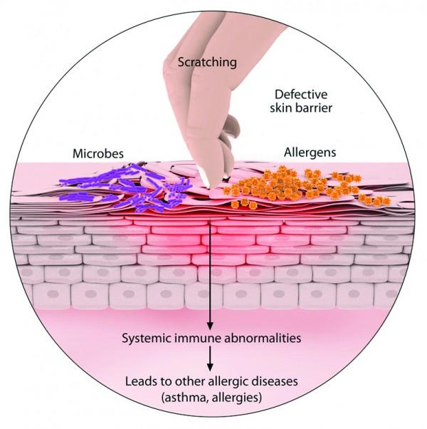 Homeopathy for Eczema- My Pure Wellness by Safaa Elbanna