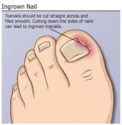 Nail Fungal Infections