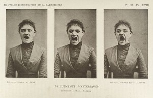 Series_of_three_photos_showing_a_hysterical_yawning_woman_Wellcome_L0034940