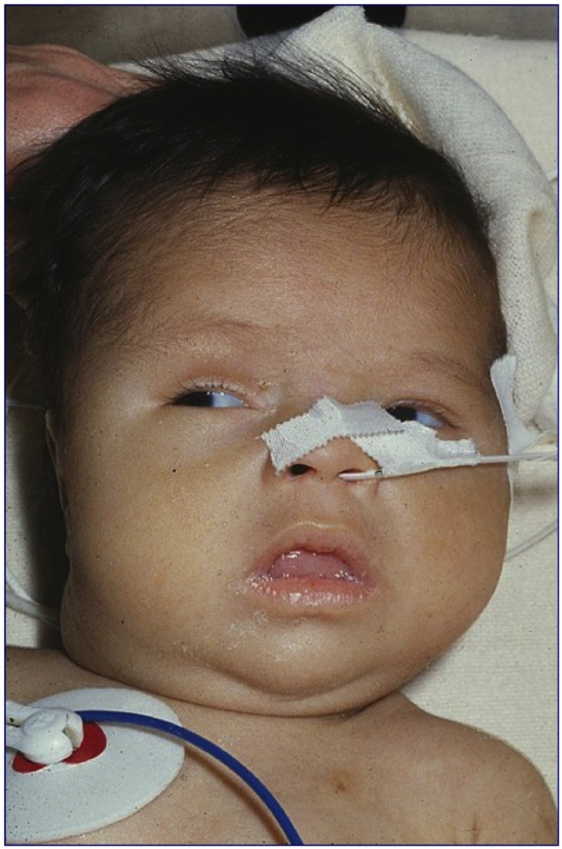 Newborn Infant Normally Suffer From Disorders Of The Thyroid Gland In Infancy Childhood And
