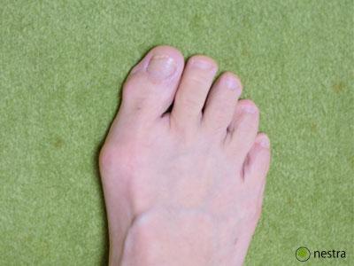 外反母趾原因1