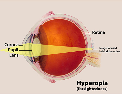 Facts About Hyperopia National Eye Institute