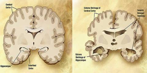 alzheimers-brain-vs-normal-tags-public