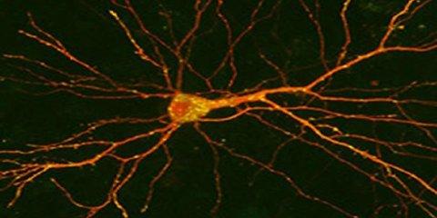 bdnf-neuron