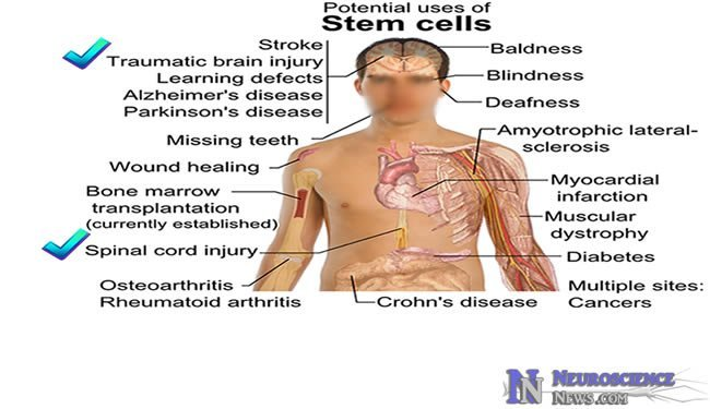 human-embryonic-stem-cell-therapy1