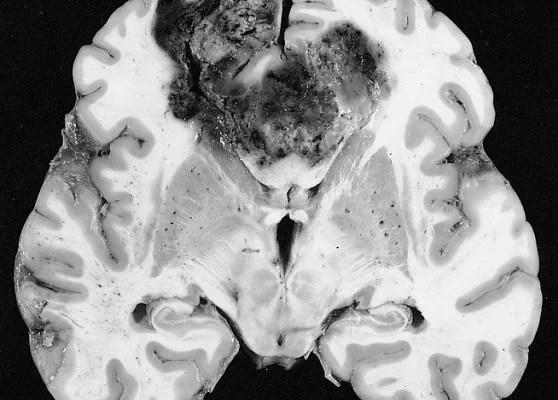 A brain slice with glioblastoma multiforme