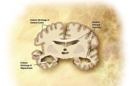 The image is a drawing of a brain slice with alzheimer's disease.