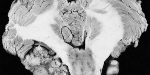 The image shows a cross section slice of a NEUROFIBROMATOSIS 2 Bilateral schwannomas from a patient.