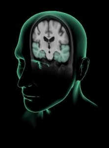 The illustration shows a cut away to the brain areas associated with Alzheimer's disease.