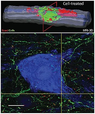 The image is an MRI showing the neuronal repair. The caption best describes the image.