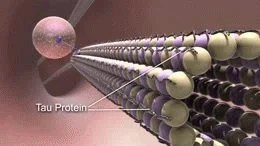 The image shows microtubule disintegration in alzheimer's disease.