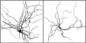 This is an image of the interneurons discussed in the research. The caption best describes the image.