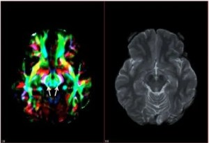 The image shows a diffusion tensor imaging scan and MRI of a Parkinson's patient's brain.