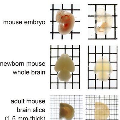 This image shows the mouse embryo and mouse brain before and after treatment with SeeDB.