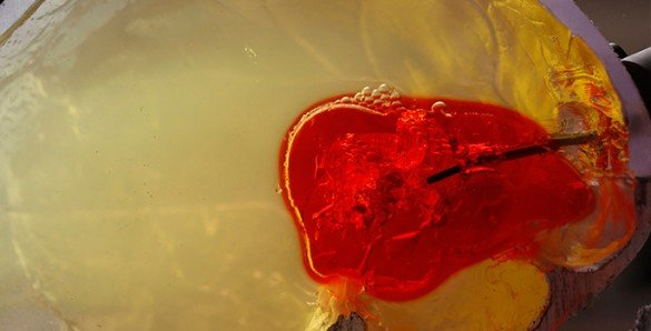 The image shows the robotic needle test on a phantom blood clot.