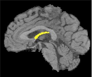 A brain showing the fornix structure highlighted.