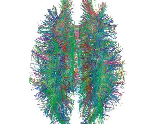 This image is a diffusion MRI tractography of the brain's white matter.