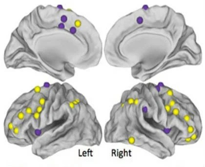 These are the MRI images of the chemobrain patients.