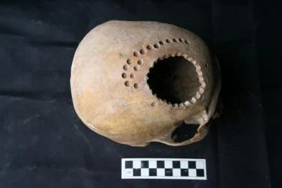 This is one of the trepanned skulls with a hole drilled into the top.